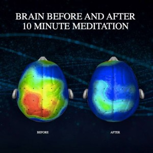Brain-Before-And-After-Meditation Large